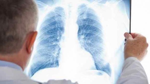Saúde faz capacitação de tuberculose para o atendimento de vulneráveis